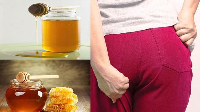 chữa bệnh trĩ bằng mật ong