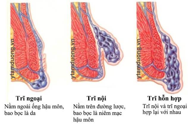 thuốc trị bệnh trĩ ngoại và hỗn hợp